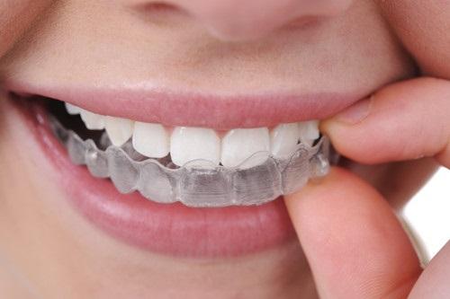Công nghệ chỉnh nha mới - Niềng răng không mắc cài 3D-1