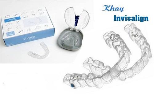 Công nghệ chỉnh nha mới - Niềng răng không mắc cài 3D-4