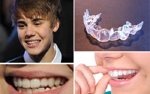 Niềng răng không mắc cài mất bao lâu là có kết quả?-1