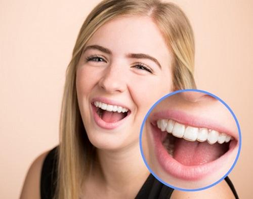 Niềng răng không mắc cài mất bao lâu là có kết quả?-2