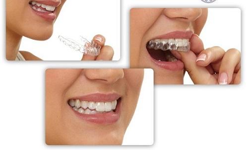 Niềng răng không mắc cài mất bao lâu là có kết quả?-4