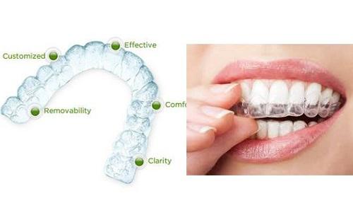Niềng răng không mắc cài ở đâu tốt và hiệu quả cao?-1