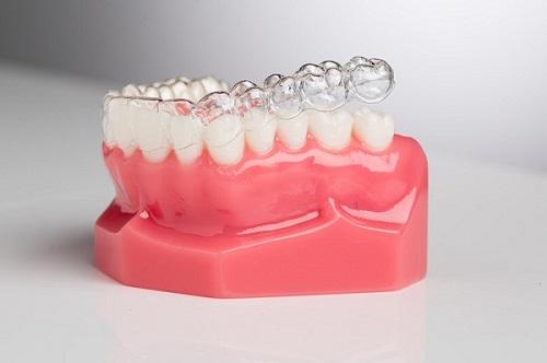 Niềng răng không mắc cài ở đâu tốt và hiệu quả cao?-2