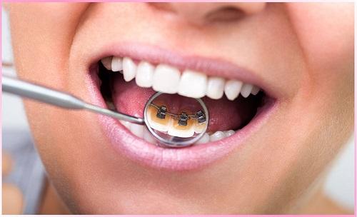 Niềng răng mắc cài mặt lưỡi là gì? Ưu điểm của kỹ thuật này-2