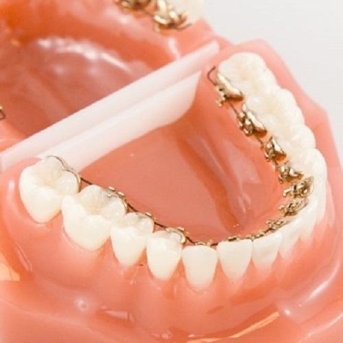 Niềng răng mắc cài mặt lưỡi là gì? Ưu điểm của kỹ thuật này-3