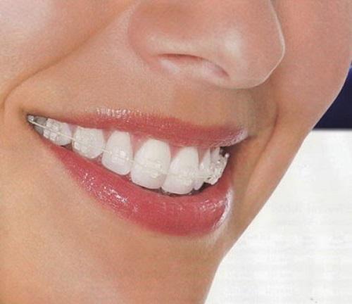 Niềng răng mắc cài pha lê có hiệu quả không?-1