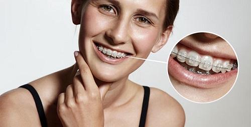 Niềng răng mắc cài pha lê có hiệu quả không?-2