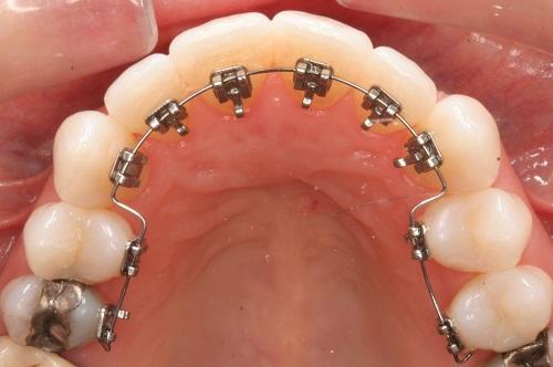 Phương pháp niềng răng mặt trong có đau không?-2