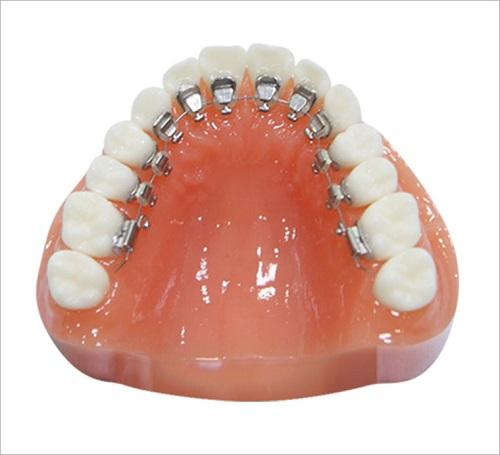 Niềng răng mặt trong giá rẻ bao nhiêu - Có đảm bảo chất lượng không?-1
