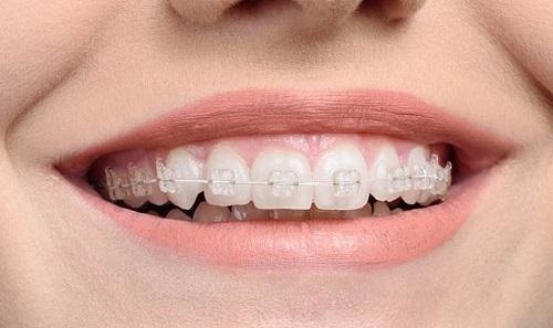 Niềng răng pha lê giá bao nhiêu tiền bạn đã biết chưa?-1