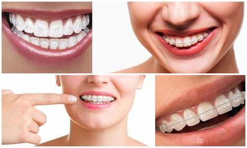 Niềng răng pha lê giá bao nhiêu tiền bạn đã biết chưa?-3