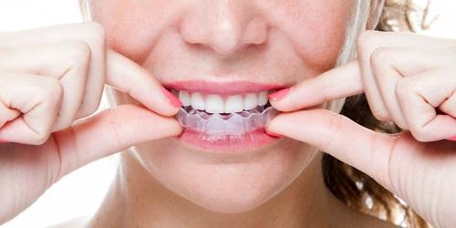 3 đặc điểm niềng răng tháo lắp cho người lớn bạn cần biết-1