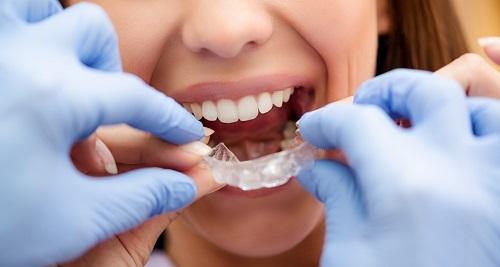 3 đặc điểm niềng răng tháo lắp cho người lớn bạn cần biết-3