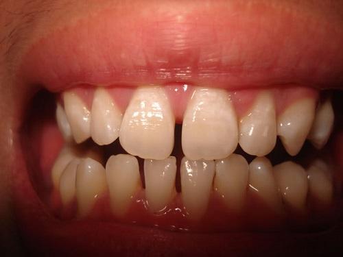 Quy trình thực hiện niềng răng thưa có đau không?-1