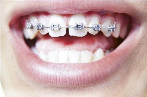Quy trình thực hiện niềng răng thưa có đau không?-2