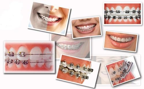Quy trình thực hiện niềng răng thưa có đau không?-3