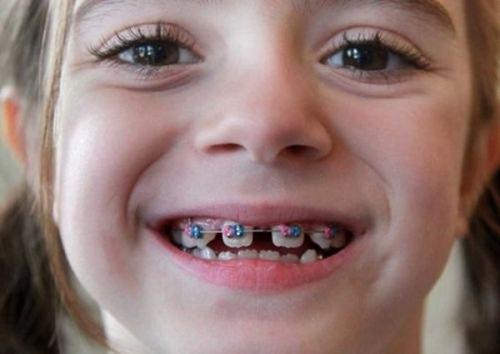 Quy trình thực hiện niềng răng thưa có đau không?-4