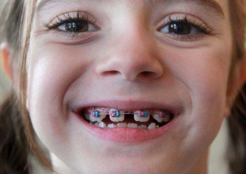Niềng răng trẻ em giá bao nhiêu tiền là được?-1