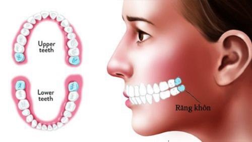 Răng khôn là gì? Khái quát và nội dung răng khôn 1