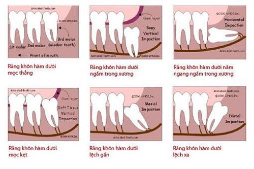 Răng khôn là gì? Khái quát và nội dung răng khôn 2