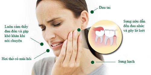 Răng khôn là gì? Khái quát và nội dung răng khôn 3