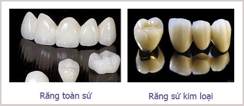 Nguyên nhân và cách khắc phục răng sứ bị đen viền nướu-2