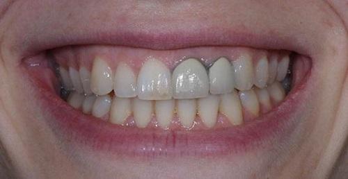Răng sứ titan có bị đen không? Cách khắc phục-1