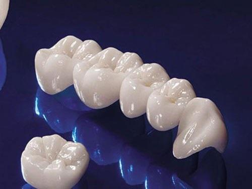 Răng sứ titan có bị đen không? Cách khắc phục-4