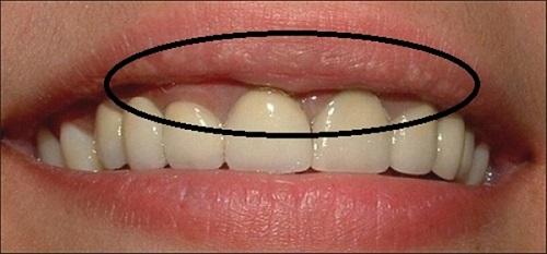 Răng sứ titan sử dụng được bao lâu là phải thay lại?-1