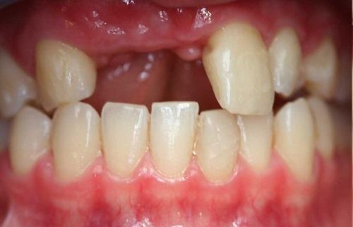Trồng răng cửa có đau không? Phải lưu ý điều gì 1