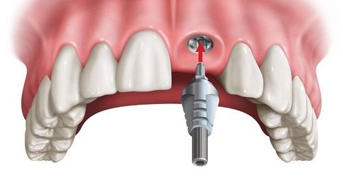 Trồng răng cửa có đau không? Phải lưu ý điều gì 2