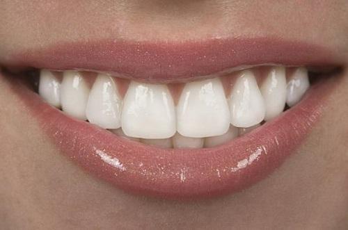 Bọc răng sứ chỉnh hô xương hàm hiệu quả cao-2