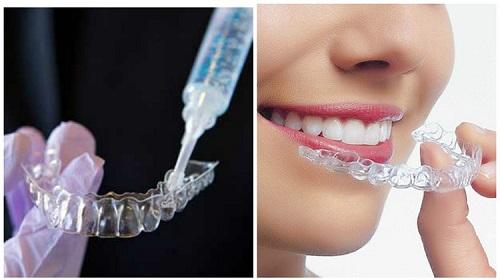 Gel tẩy trắng răng có tốt không? Cách sử dụng như thế nào? 3