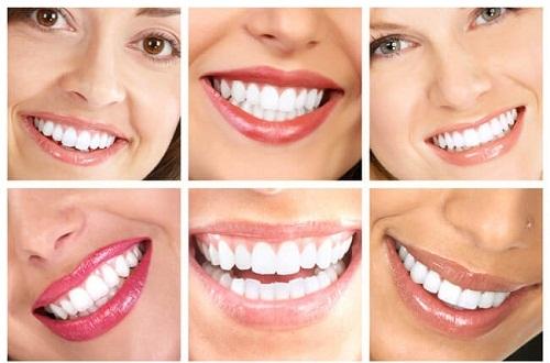 Nên tẩy trắng răng bằng phương pháp nào là tốt nhất và hiệu quả trắng cao? 1