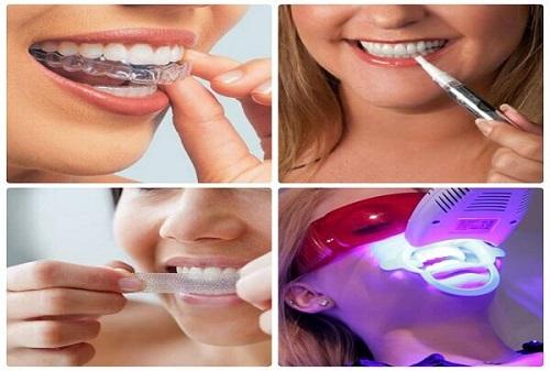 Nên tẩy trắng răng bằng phương pháp nào là tốt nhất và hiệu quả trắng cao? 2