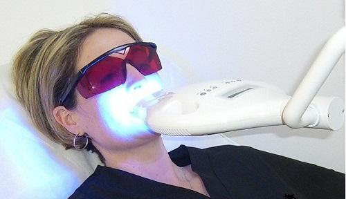 Nên tẩy trắng răng bằng phương pháp nào là tốt nhất và hiệu quả trắng cao? 3