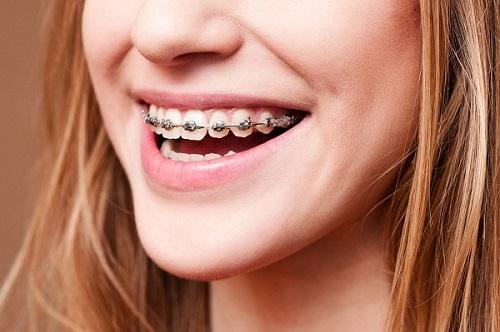 Niềng răng có nguy hiểm không? 3 lời khuyên cho bạn sử dụng dịch vụ-1