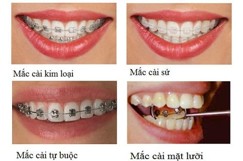 Niềng răng có nguy hiểm không? 3 lời khuyên cho bạn sử dụng dịch vụ-2