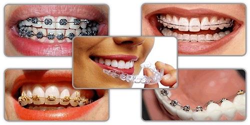Niềng răng hô mất bao lâu là hoàn thành? Phải lưu ý gì trước khi niềng răng-3