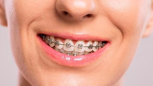 Niềng răng mắc cài inox giá bao nhiêu tiền là có thể niềng được-2