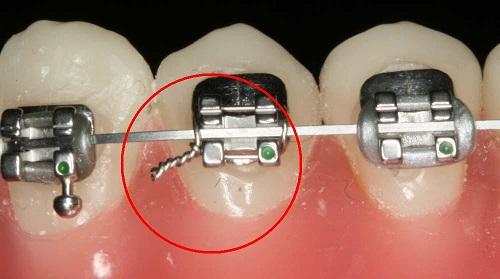 Niềng răng mắc cài inox giá bao nhiêu tiền là có thể niềng được-3