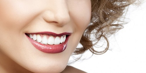 Niềng răng mắc cài inox giá bao nhiêu tiền là có thể niềng được-4