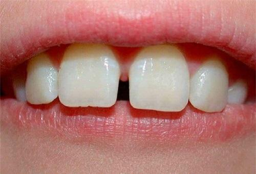 Niềng răng thưa 1 hàm giá bao nhiêu? Tư vấn giá tốt nhất-1
