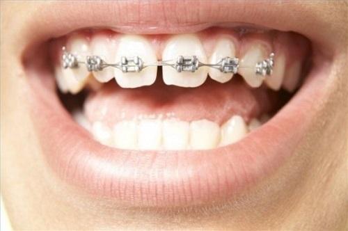 Niềng răng thưa 1 hàm giá bao nhiêu? Tư vấn giá tốt nhất-2