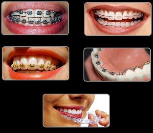 Niềng răng thưa 1 hàm giá bao nhiêu? Tư vấn giá tốt nhất-3
