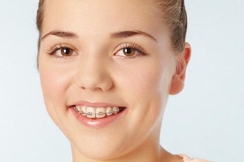 Niềng răng vẩu giá bao nhiêu? Giá có khác niềng răng thông thường không?-2