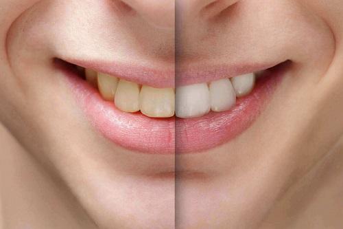 Tác hại của việc tẩy trắng răng gây ảnh hưởng gì cho bạn 1
