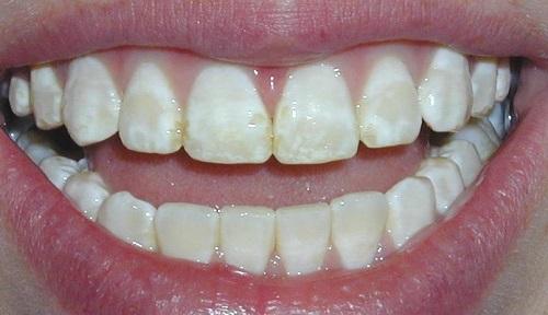 Tác hại của việc tẩy trắng răng gây ảnh hưởng gì cho bạn 2