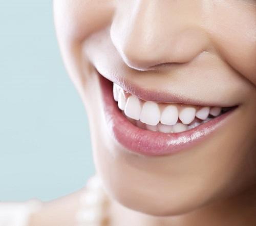Tác hại của việc tẩy trắng răng gây ảnh hưởng gì cho bạn 3