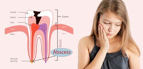 Áp xe răng ở trẻ em dưới 15 tuổi phụ huynh cần lưu ý gì? 2